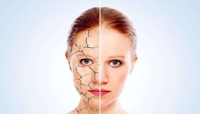 проблемная кожа лица лечение