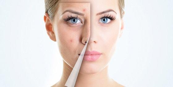 средства для проблемной кожи лица