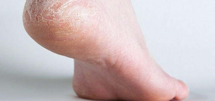 Как лечить трещины пяток в домашних условиях 729