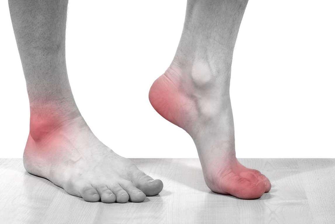 Болезни cуставов и связок: причины, симптомы, лечение и ...