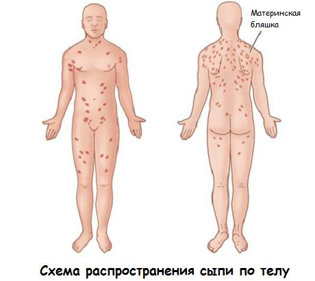 лечение розового лишая у человека