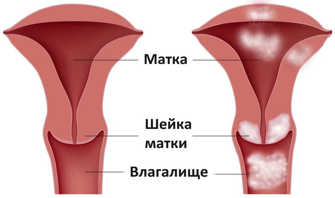 Эрозия шейки матки причины возникновения и симптомы