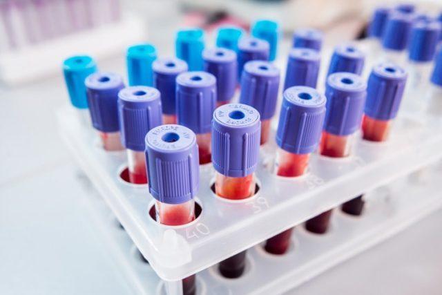 общий биохимический анализ крови