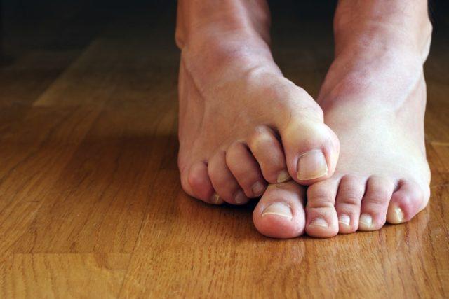 причины онемения пальцев ног