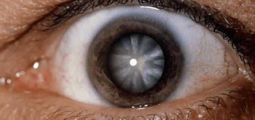 катаракта причины
