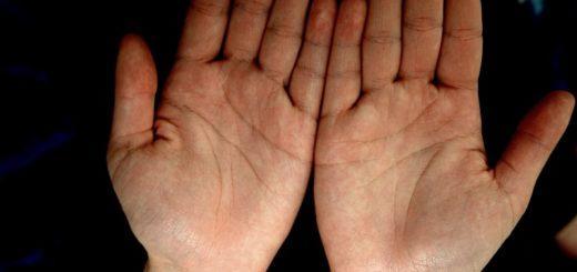 диагностика болезни по ногтям рук