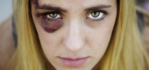 быстро убрать синяк под глазом от удара