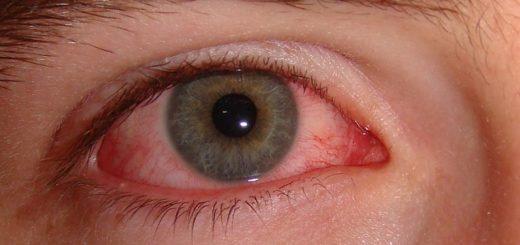 аллергический конъюнктивит лечение