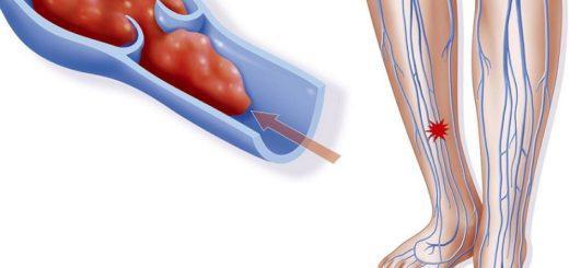 диета при тромбозе глубоких вен