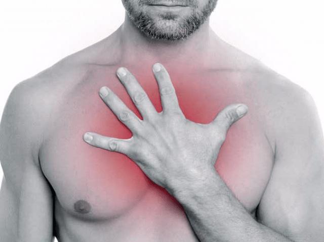 синдром сдавления верхней полой вены