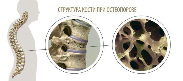 защита от остеопороза