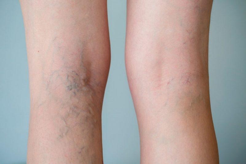сосудистые звездочки на ногах лечение