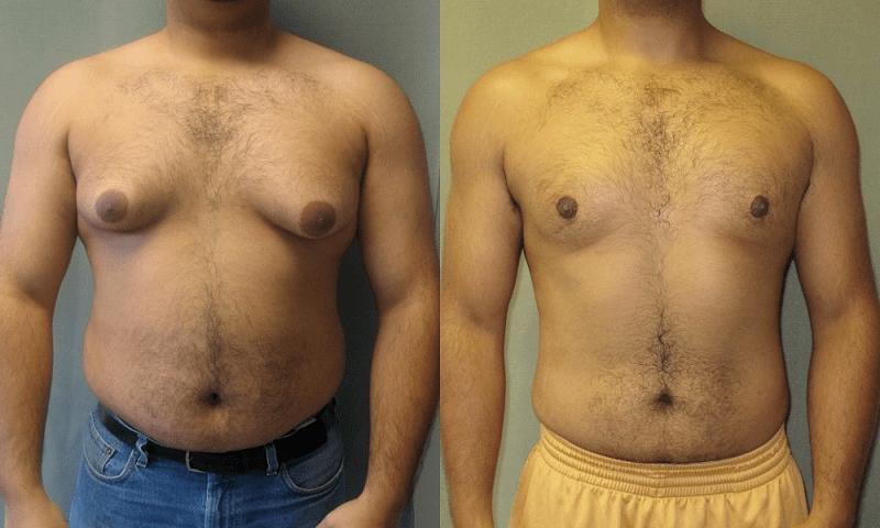 почему у мужчины растет грудь