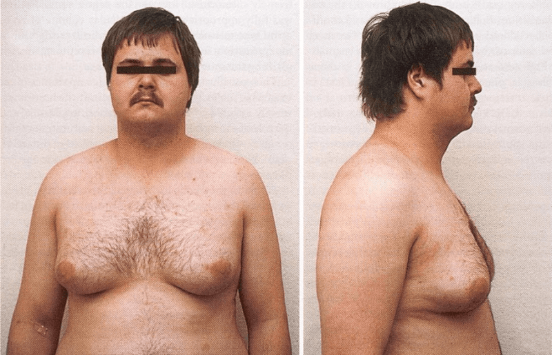 растет грудь у мужчины