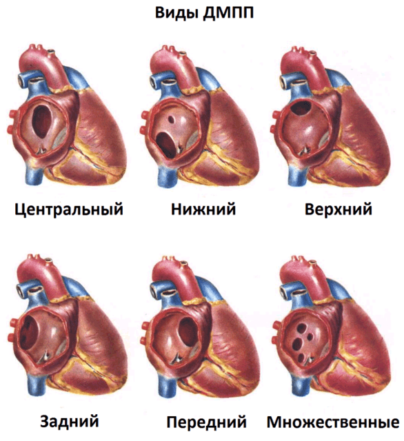 дефект межпредсердной перегородки сердца