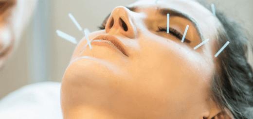 акупунктура лица