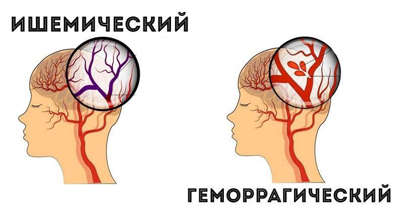 тихий инсульт симптомы