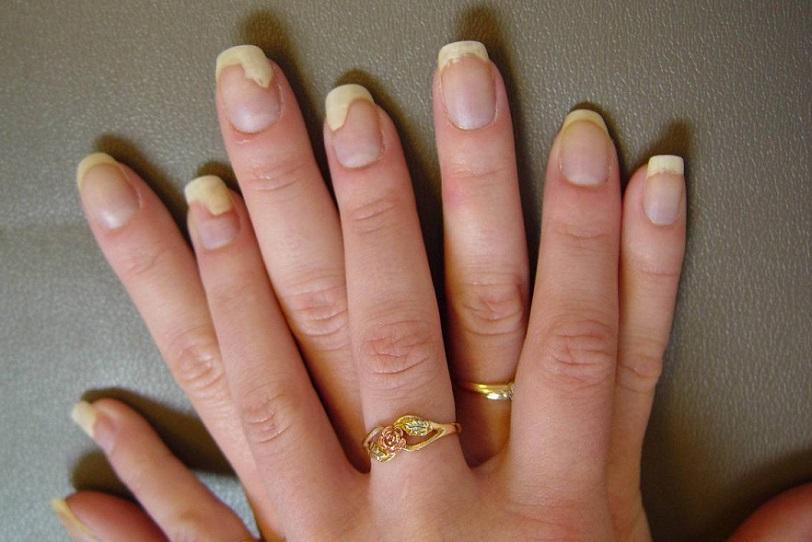 псориаз на ногтях рук