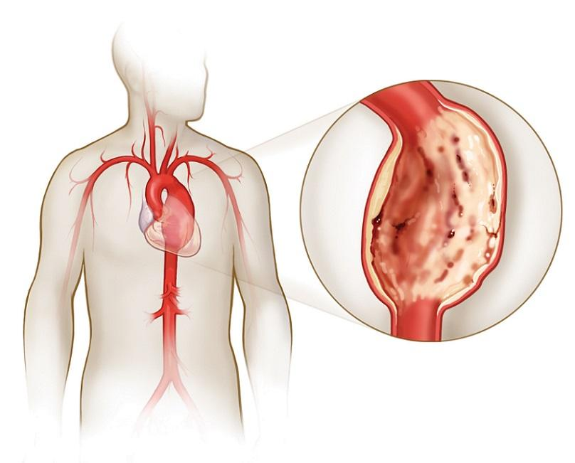 аневризма симптомы